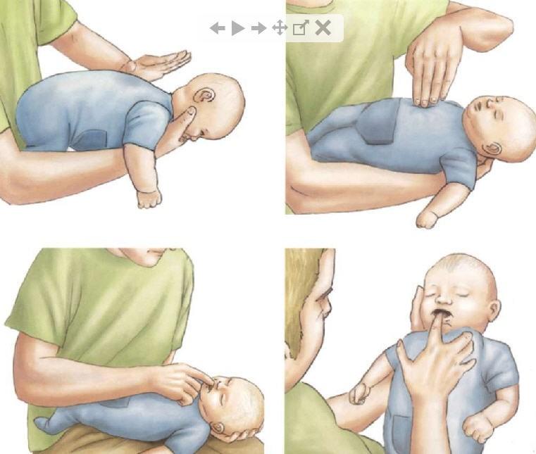 ребенок подавился, если ребенок подавился, что делать если ребенок подавился, ребенок подавился первая помощь